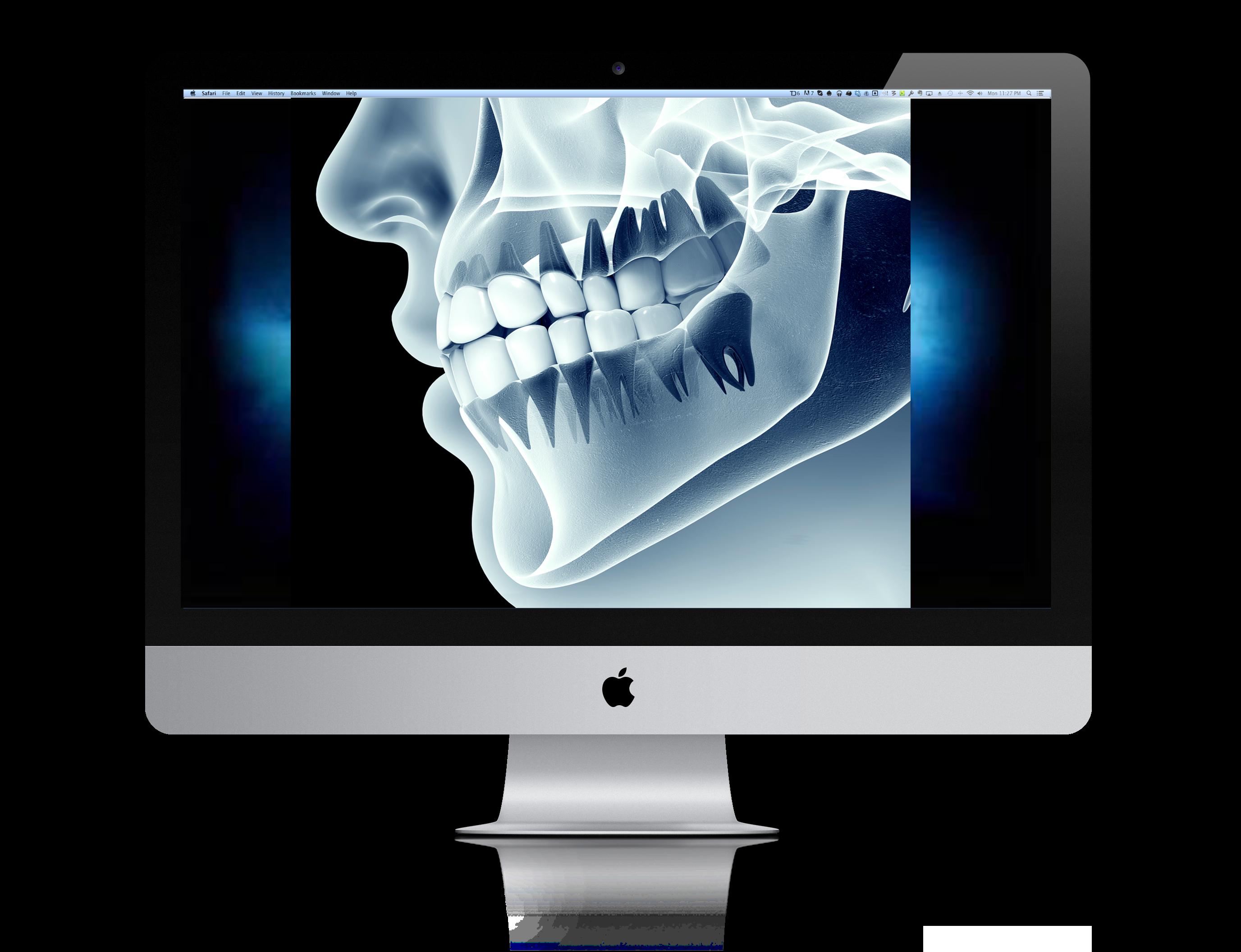 Ακτινογραφία γναθοχειρουργικής στις Σέρρες